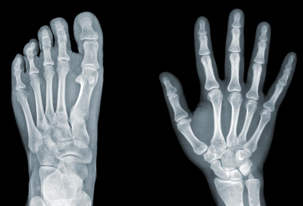 Image of an x-ray of a left foot and a right hand. Imaging and x-ray are some of the many services provided at North Idaho Orthopedics and sports medicine NIOSM